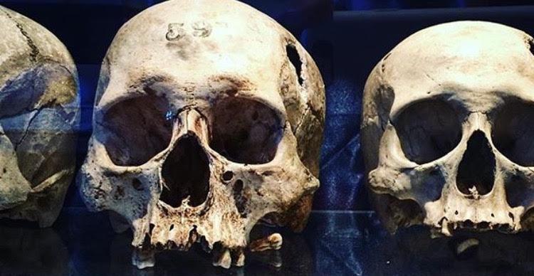 trephined skulls