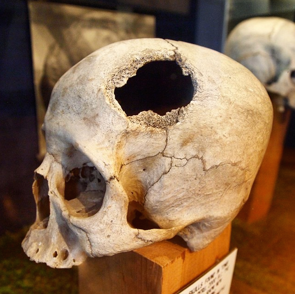 """The Museum mantains an extensive collection of """"trephined"""" skulls, largely from ancient Central America"""