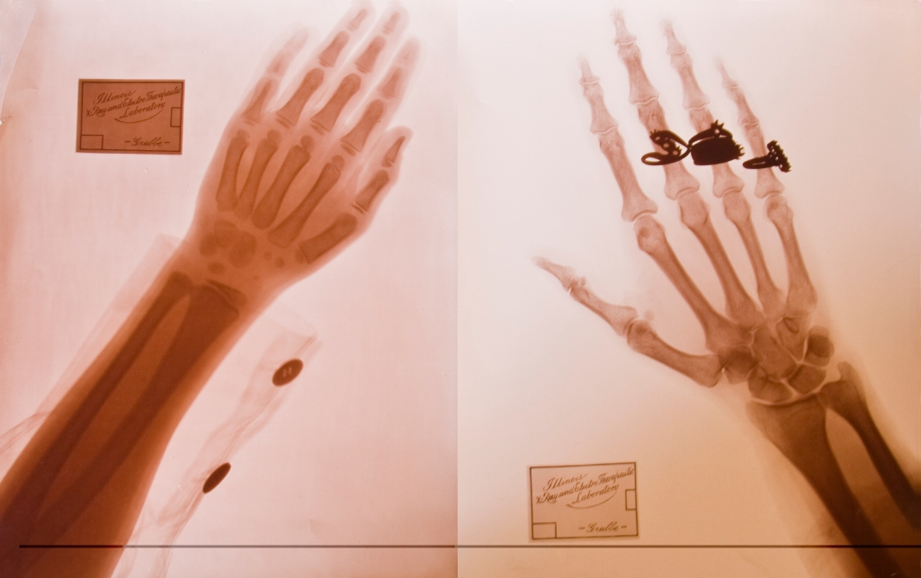 Image of an x-ray with a red tint. The bones of the hand and rings of the person are visible in the x-ray image