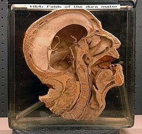 specimen-JCBGrant-museum-2