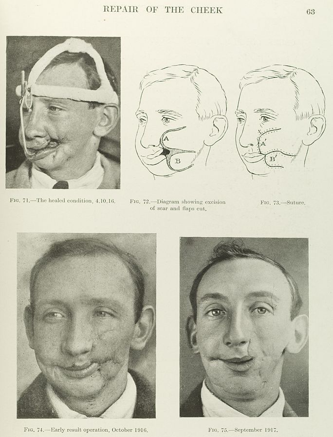 A textbook page showing three photographs of a man with two drawings detailing a facial reconstruction surgery of the cheek