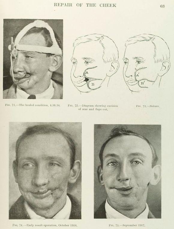 Una página de libro de texto que muestra tres fotografías de un hombre con dos dibujos que detallan una cirugía de reconstrucción facial de la mejilla